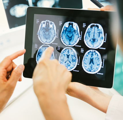 Identifying and Treating Concussion/mTBI in Service Members and Veterans