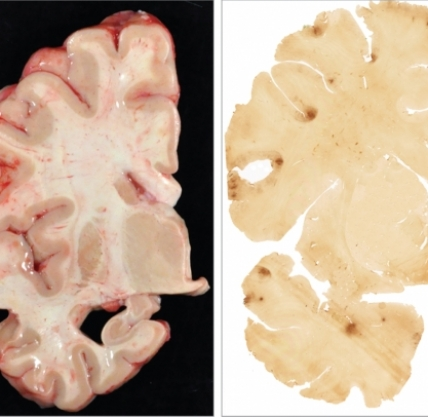 Chronic traumatic encephalopathy in 25-year-old former football player