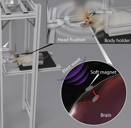 A Wireless Intracranial Brain Deformation Sensing System for Blast-Induced Traumatic Brain Injury