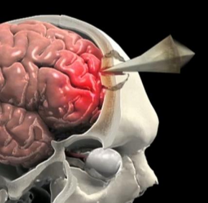 Penetrating Brain Injury Animation Brainline