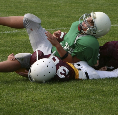 Dangers of Multiple Concussions