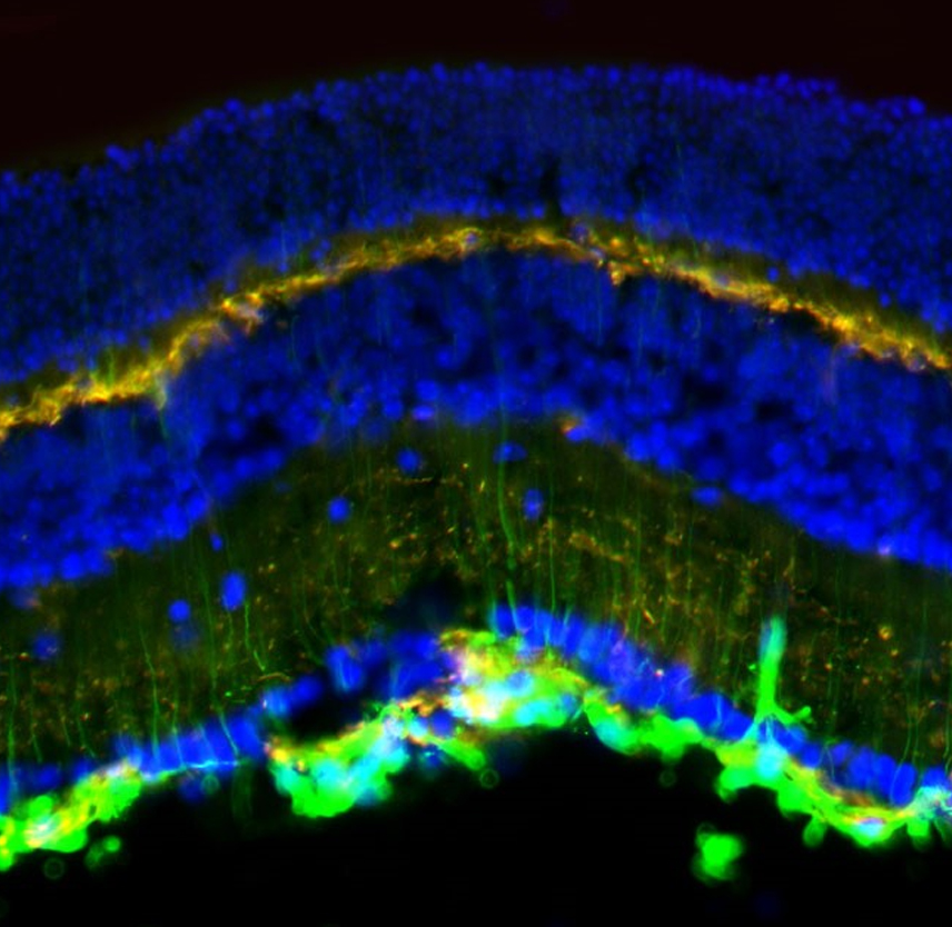 Lasting Retinal Injury in a Mouse Model of Blast-Induced Trauma