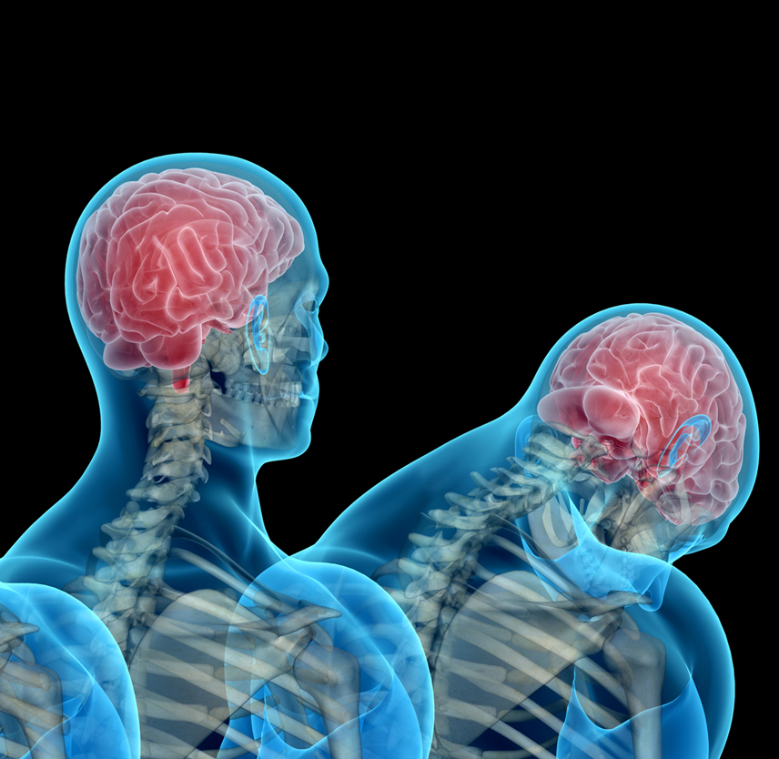 Head and neck positioning affects concussion risk