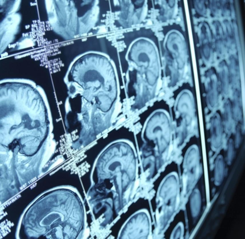 What Happens to the Brain During Injury and in the Early