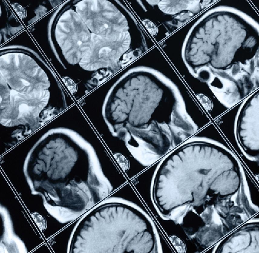 Las Lesiones Cerebrales Traumáticas