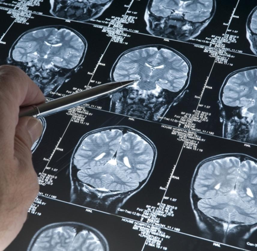 Traumatic brain injury: future assessment tools and treatment prospects