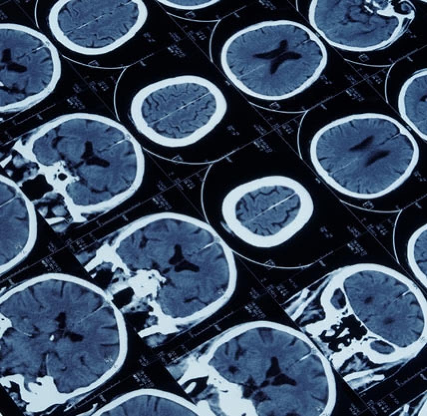 Brain Injuries: Silent Epidemic