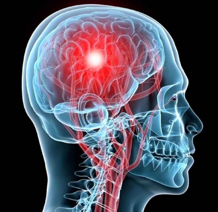 Concussion Danger Signs