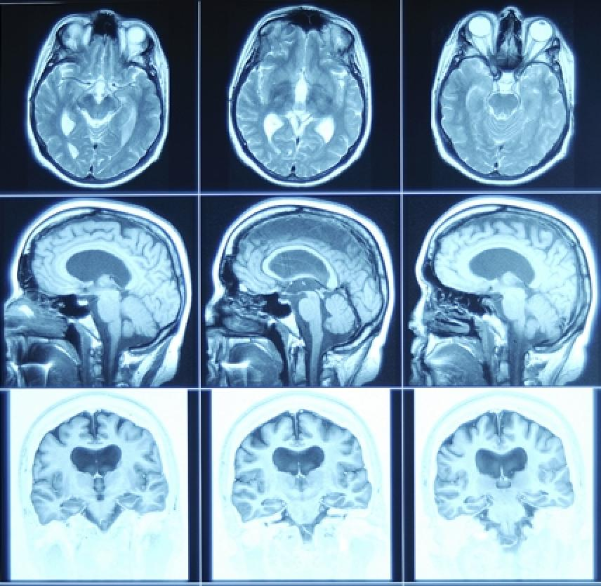 Traumatic Brain Injury: Cognitive and Communication Disorders