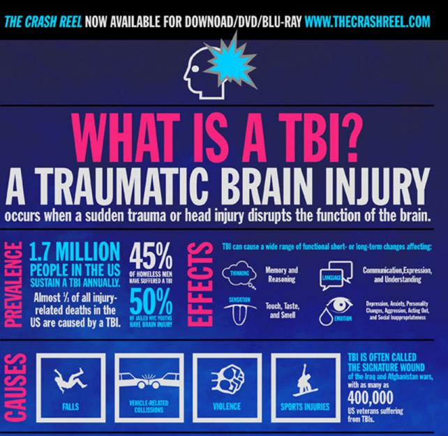 Love Your Brain: What Is A TBI? Infographic