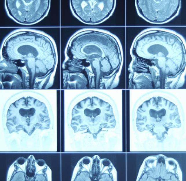 Traumatismo cerebral: Esperanza en la investigación
