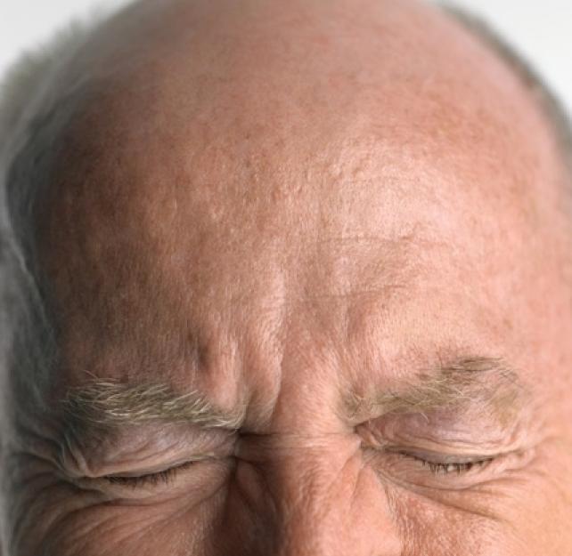 Can the Brain Itself Feel Pain?