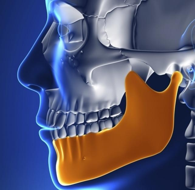 Can a Hit to the Jaw Cause TBI?
