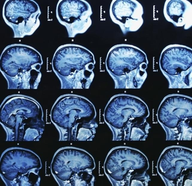 What Is the Ideal Timeline to Do MRIs, fMRIs, DTIs, and Fiber Tracking to Diagnose TBI?