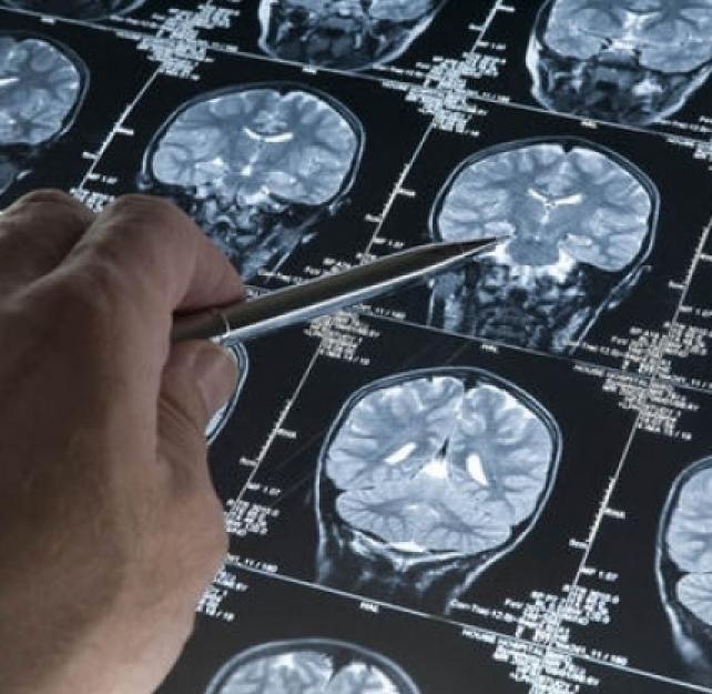 Brain Trauma, Concussion, and Coma: Specific Injuries in Head Truama