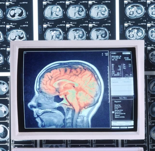 Facts about Concussion and Brain Injury: Where To Get Help
