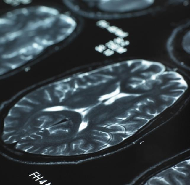 The Pathology of CTE Versus That of Other Neurodegenerative Diseases