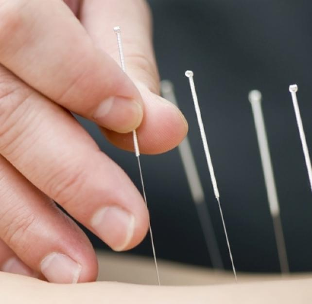 How Does Acupuncture Help People with TBI?