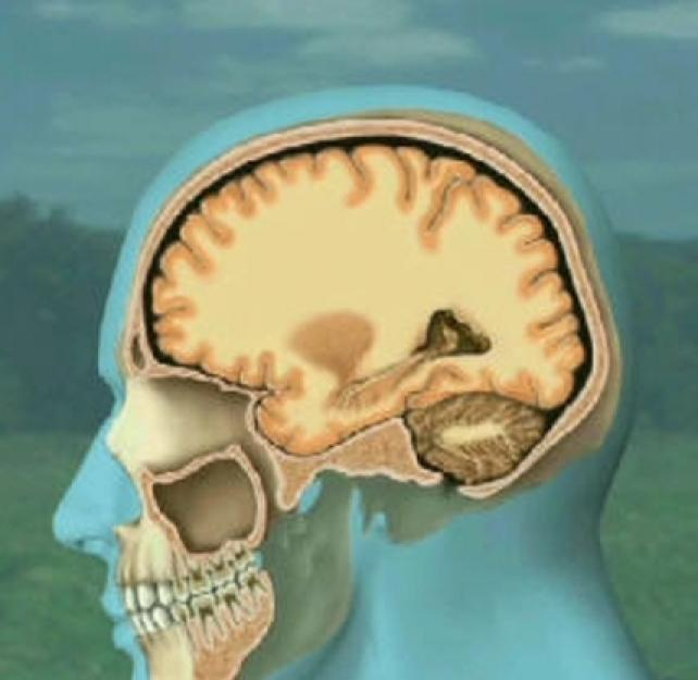 Animated Deceleration Injury from a Traumatic Brain Injury