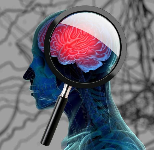 CTE: How repeated head blows affect the brain
